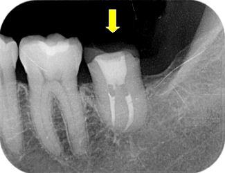 抜歯したところに、反対側の親知らずを抜歯して移植しました。(↓) 移植... 自家歯牙移植|茨城